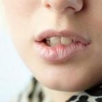 Java Lip Exfoliator