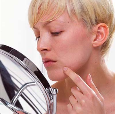 Acne Treatment Blunders