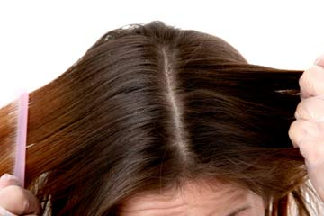 A healthy scalp- Tips from Sunsilk hair Expert