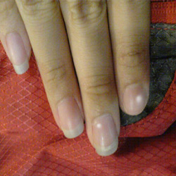 How To Get Rid Of White Spots On Nails