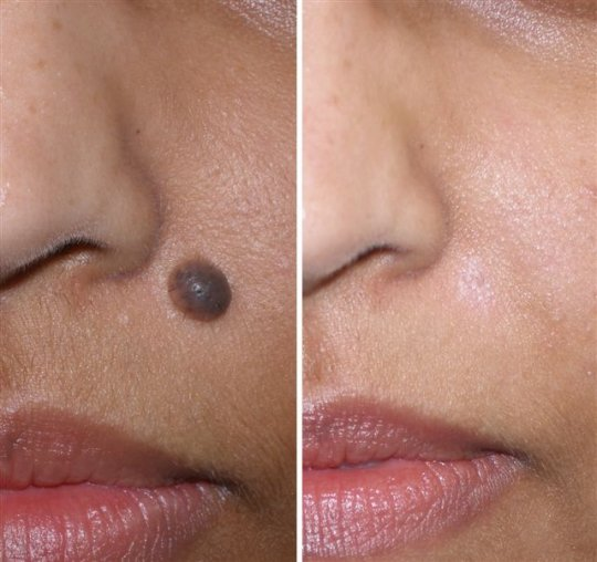 Natural Mole Removal