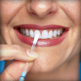 Naturally Whiten Teeth at Home