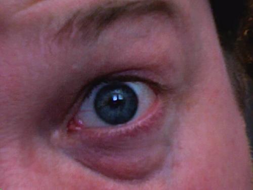 Baggy eyes Dilemma