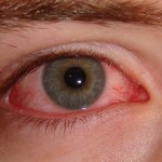 Pink eye( Ashob Chasham)- Viral conjunctivitis Home Remedies