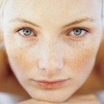 Freckles Causes and Remedies