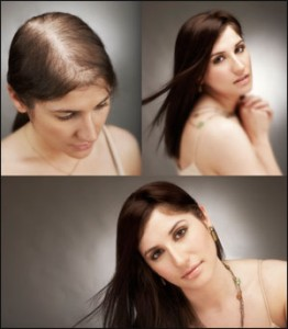 Five Natural Remedies for Hair Loss