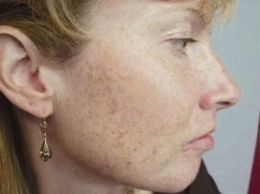How to Eliminate Black Spots on Face