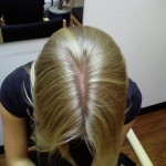 Dry Scalp Is The Reason For Hair Loss
