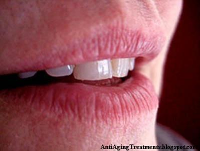 Lip Wrinkles Home Remedy