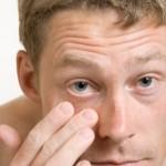 Eyebright Benefits