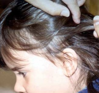 Remedies for Head Lice