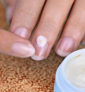 Causes Of Peeling Nails