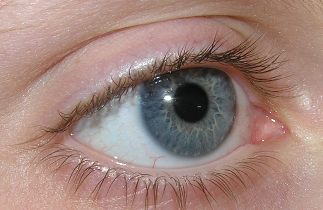Dry Eyes: What Do You Do When Your Eyes Remain Tight Shut