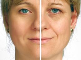 Can We Prevent Wrinkles