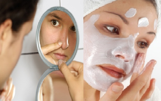 Face masks for acne scars